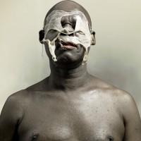 Chucky skin disease